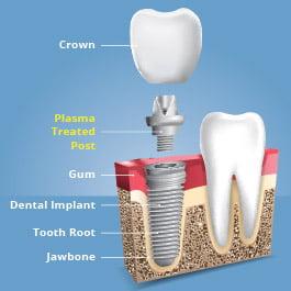 Plasma treatment of dental implants creates stronger bonds